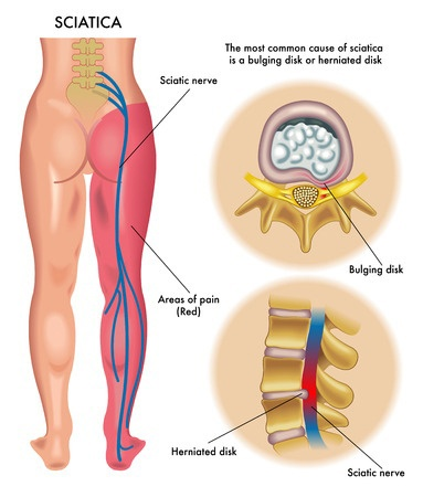 Electrotherapy for Sciatic pain