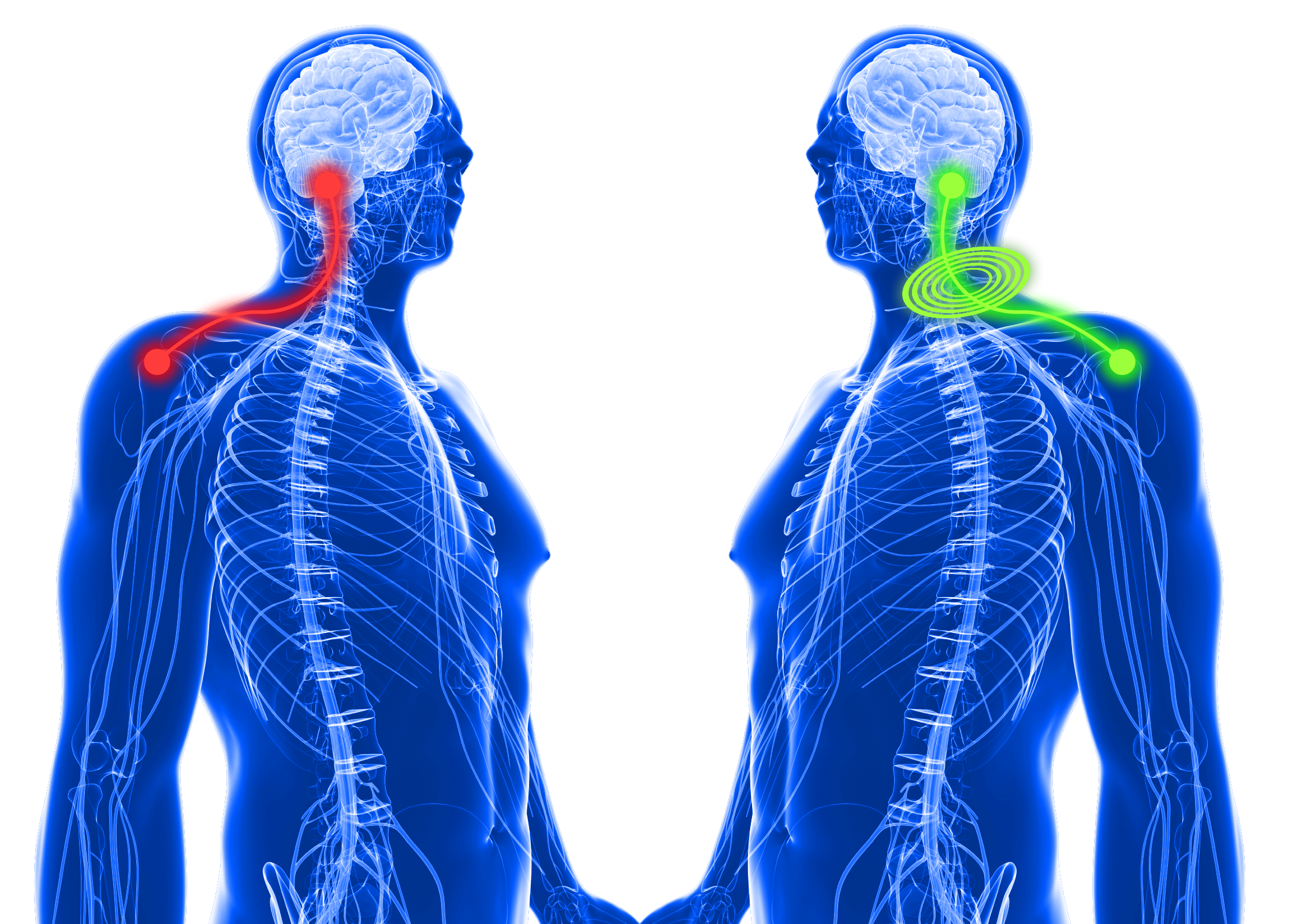 How Tens pain relief works on shoulder pain.png