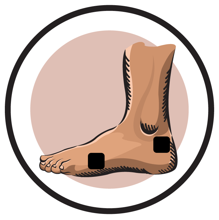 TENS Therapy for Plantar Fasciitis
