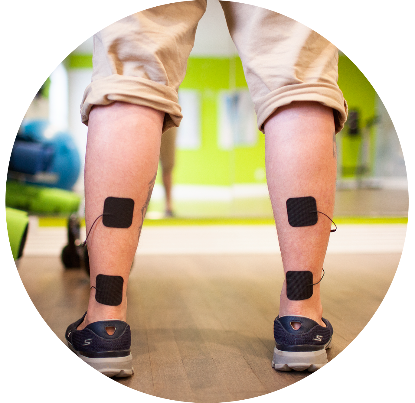 TENS Therapy for Calf strains