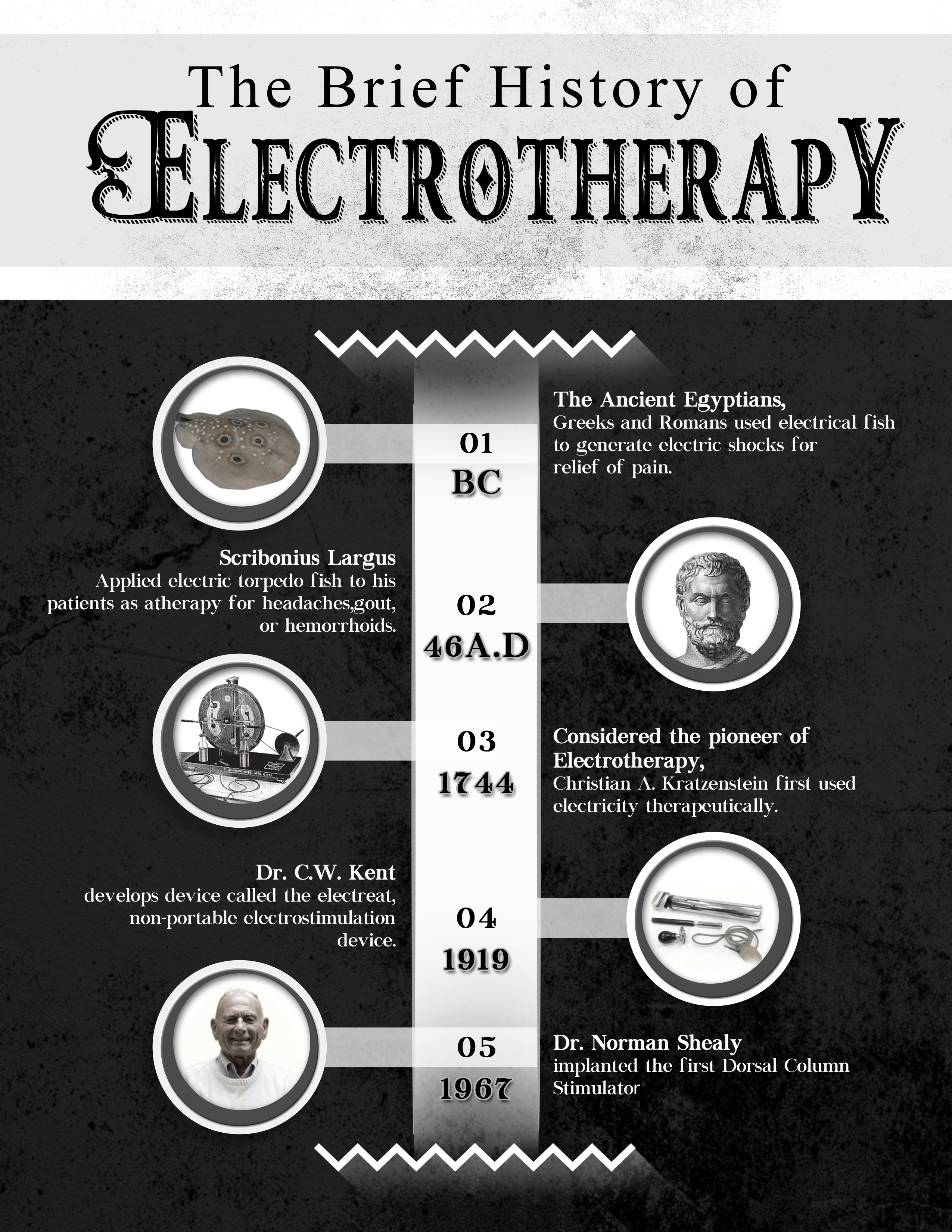 A history of TENS devices and portable pain relief