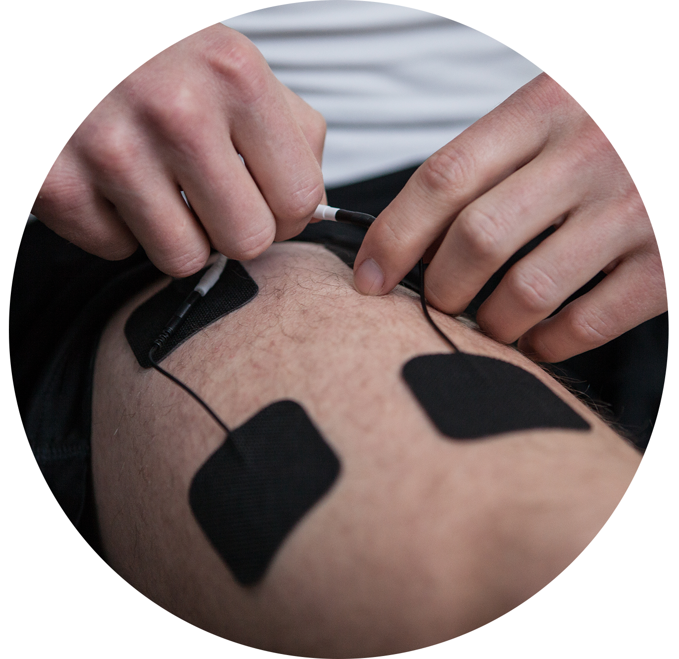 TENS pad placement for quad/thigh pain