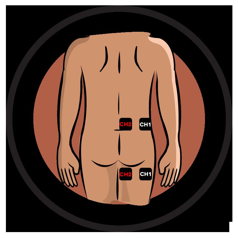 sciatica 3 CHANNELS.png